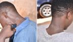 (자료사진) 나이지리아의 이슬람 극단주의 무장단체인 보코하람의 공격으로 목에 흉터가 남은 나이지리아 남성들.
